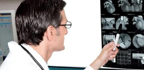 Computer-Tomografie einen Schlaganfall oder eine Blutung im Gehirn erkennen