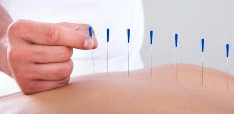 Akupunktur hat sich als alternative Heilmethode bei Arthritis bewährt
