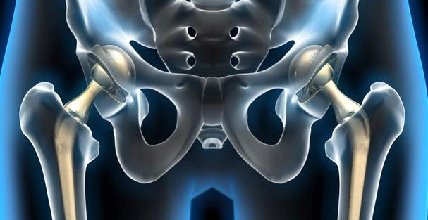 Prothesen als Behandlungsmöglichkeit bei Arthrose