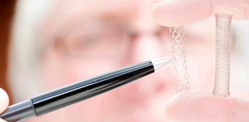 Eine Schlaganfall-Behandlung kann mit einem sogenannten Stent durchgeführt werden