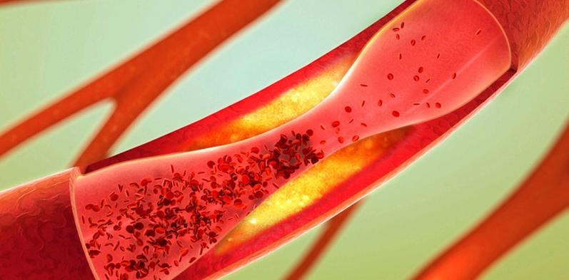 Apoplex wird durch Blutgerinnsel ausgelöst