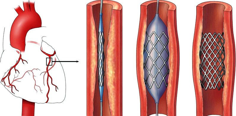 Stent-Implantation