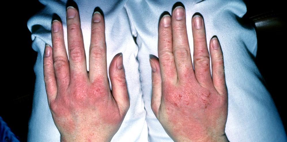 Ekzeme: Eine Kontaktdermatitis auf Händen