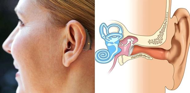 Cochlea-Implantat wie ein normales Hörgerät