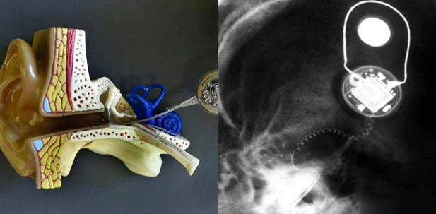 Sprachverstärker mit dem eigentlichen Implantat verbunden