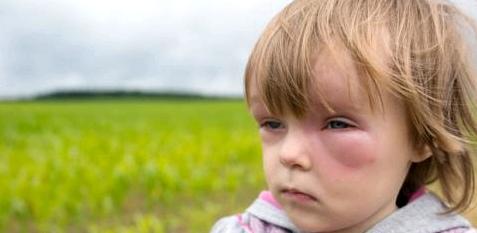 Reagieren Menschen auf Insektenstiche allergisch oder entzünden sich diese, kann die Stichstelle zu einer Beule anschwellen