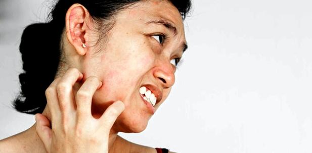 Die juckenden roten Ausschläge verlaufen meist gürtelförmig am Körper. So kann der Arzt schnell eine Diagnose stellen