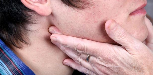 anschwellen-der-lymphknoten-bei-heiserkeit