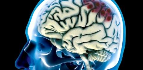 Eine häufige Ursache bei einer Hirnblutung ist das Schädel-Hirn-Trauma infolge eines Aufpralls