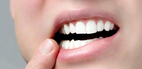 Aphthen verursachen starke Schmerzen am Mund