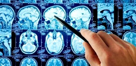 Gehirn kann sich selbst heilen