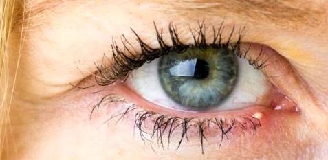 Grießkorn am Auge