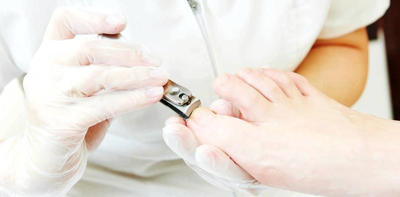 Medizinische Fußpflege bei Diabetikern kann Nagelpilz vorbeugen