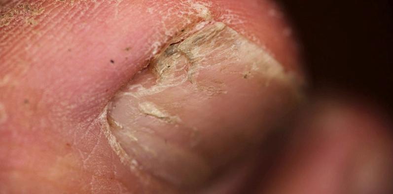 Nagelpilz beginnt oft am seitlichen Rand