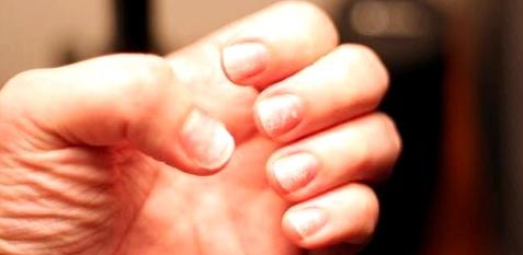 Nagelverfärbungen und brüchige Fingernägel