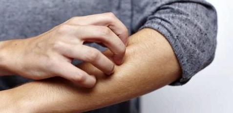 Mann reibt sich die Haut am Arm
