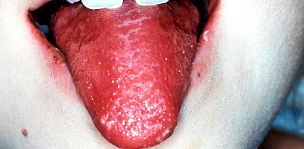 Die Kinderkrankheit Scharlach erkennt man u. a. an der Himbeerzunge