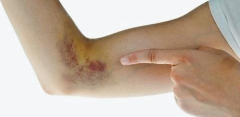 Bei dem Von-Willebrand-Syndrom handelt es sich um eine erblich bedingte Blutgerinnungsstörung.