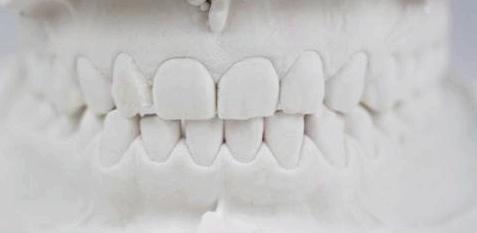 Zaehneknirschen durch schiefen Kiefer