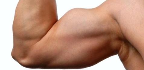 Muskelkater sind kleinste Muskelfaserrisse