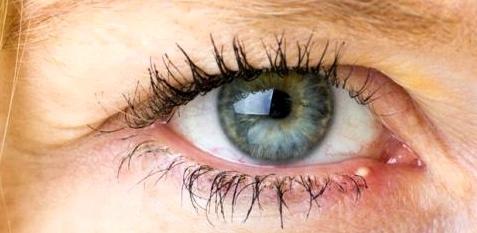 Wenn sich ein Gerstenkorn bildet, sollten Sie das Auge am besten ganz in Ruhe lassen