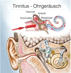 Tinnitus Ohrgeräusch Illustration Innenohr