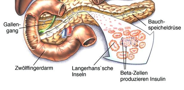 Häufige Diabetes-Ursachen: Fehlfunktion der Beta-Zellen und Insulinmangel